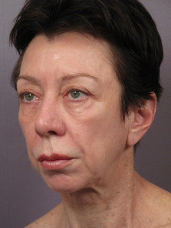 Eyelid Surgery before 280831