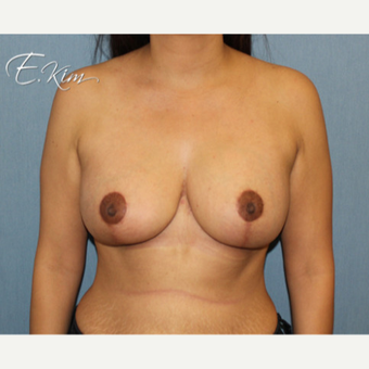 25-34 year old woman treated with Breast Lift with Implants after 3663355