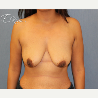 25-34 year old woman treated with Breast Lift with Implants before 3663355