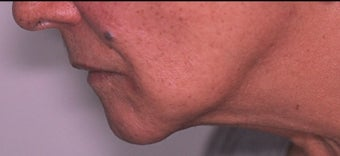 70 year old woman 3 months following treatment for sagging neck and jowls with Ultherapy after 1531908