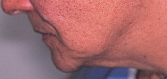 70 year old woman 3 months following treatment for sagging neck and jowls with Ultherapy before 1531908