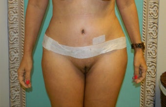 Tummy Tuck  after 1112047