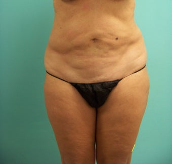 Tummy Tuck  before 1112047