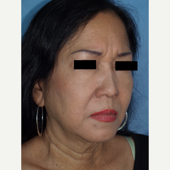 55-64 year old woman treated with Facelift and Fat Transfers to Face before 3194303
