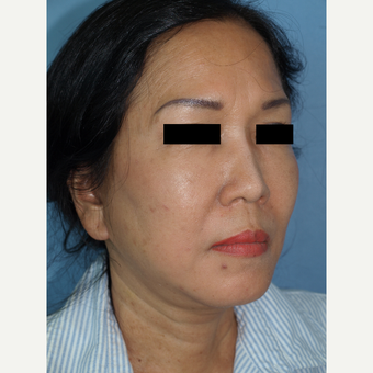 55-64 year old woman treated with Facelift and Fat Transfers to Face after 3194303