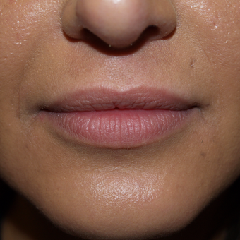 25-34 year old woman treated with Lip Augmentation before 3571283
