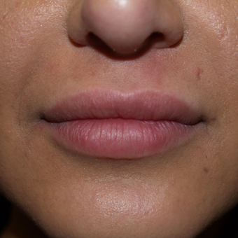 25-34 year old woman treated with Lip Augmentation after 3571283
