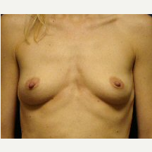 35-44 year old woman treated with Breast Implants before 3669883