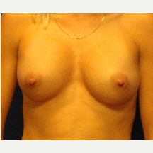 35-44 year old woman treated with Breast Implants after 3669883