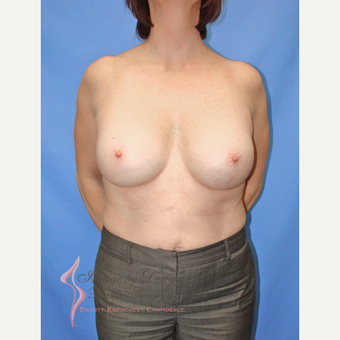 35-44 year old woman treated with Breast Implants after 3066663