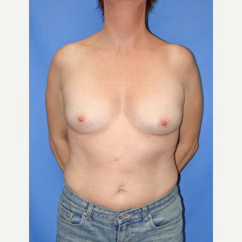 35-44 year old woman treated with Breast Implants before 3066663