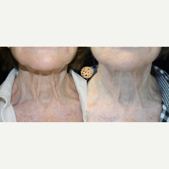 75 and up year old woman treated with Non-Surgical Neck Lift before 2725280