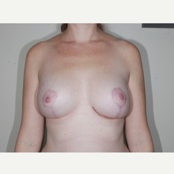 35-44 year old woman treated with Breast Implant Revision after 3695455
