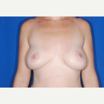 35-44 year old woman treated with Breast Implant Revision before 3695455