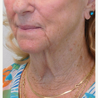 55-64 year old female treated with Lower Face Lift and Neck Lift before 3124353