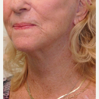 55-64 year old female treated with Lower Face Lift and Neck Lift after 3124353