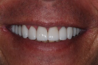 Decayed Teeth Restored With Porcelain Veneers