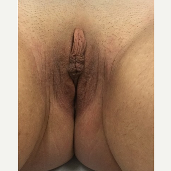 18-24 year old woman treated with Labiaplasty before 3187479