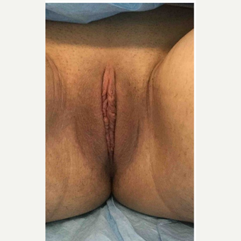 18-24 year old woman treated with Labiaplasty after 3187479