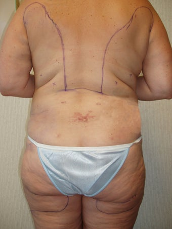 Liposuction of Buttocks and Hips after 55476