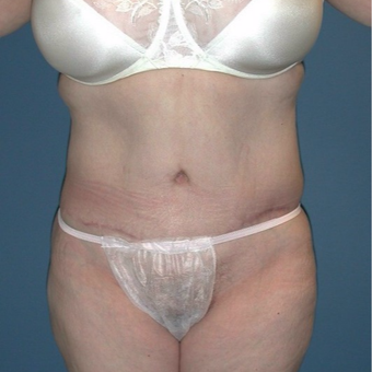 45-54 year old woman treated with Tummy Tuck after 3682409