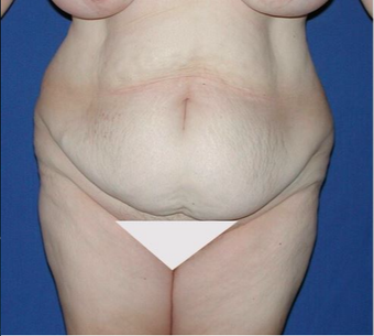 45-54 year old woman treated with Tummy Tuck before 3682409
