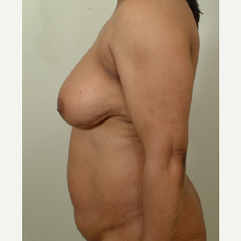 35-44 year old woman treated with Mommy Makeover before 3439954
