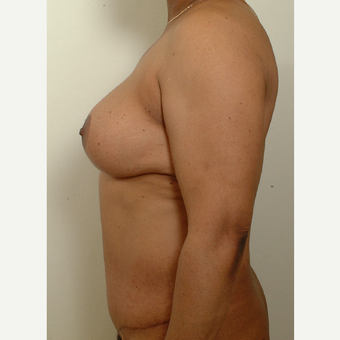 35-44 year old woman treated with Mommy Makeover after 3439954