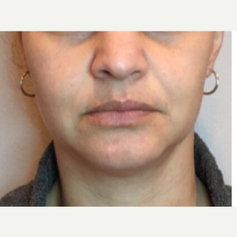 35-44 year old woman treated with Injectable Fillers before 2975993