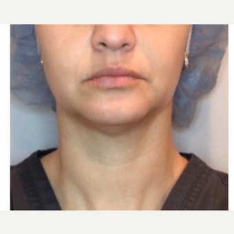35-44 year old woman treated with Injectable Fillers after 2975993
