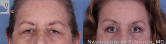 65-74 year old woman treated with Brow Lift before 3768255