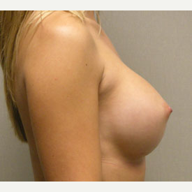 Breast Augmentation after 3681057