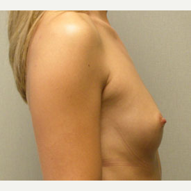 Breast Augmentation before 3681057