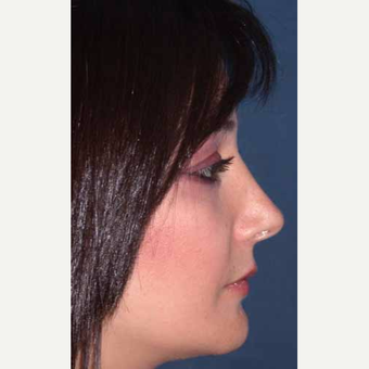 35-44 year old woman treated with Rhinoplasty after 3521217
