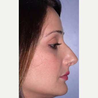 35-44 year old woman treated with Rhinoplasty before 3521217