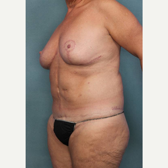 55-64 year old woman treated with Breast Reduction after 3442597