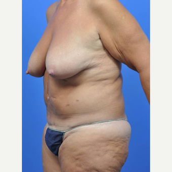 55-64 year old woman treated with Breast Reduction before 3442597