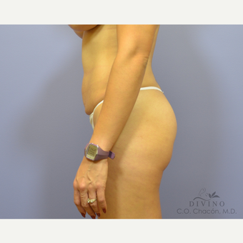 25-34 year old woman treated with Liposuction before 3421377
