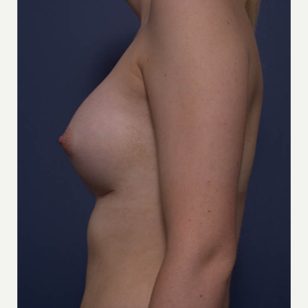 18-24 year old woman treated with Breast Augmentation after 3766937