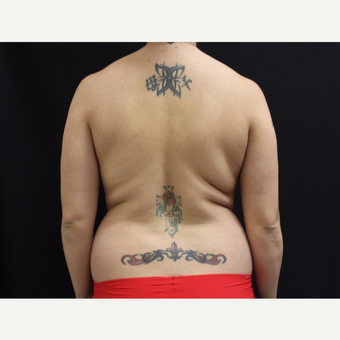 25-34 year old woman treated with Liposuction before 3099565