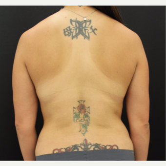 25-34 year old woman treated with Liposuction after 3099565