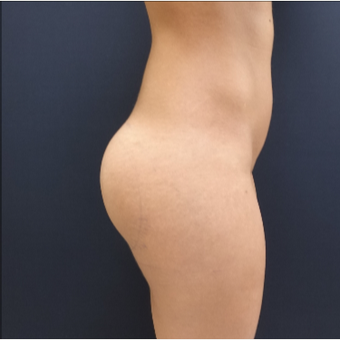 25-34 year old woman treated with 548cc Round Silicone Butt Implants for her Butt Augmentation after 3033300