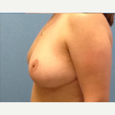 Breast Reduction after 3278932