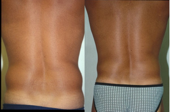 39-year-old man treated with Liposuction. after 574556