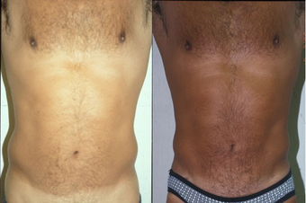 39-year-old man treated with Liposuction. before 574556