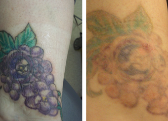 Tattoo removal photo from kristin j tarbet md facs for Tattoo removal maryland