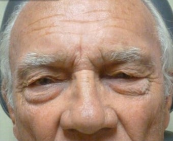 65-74 year old man treated with Brow Lift before 3227776