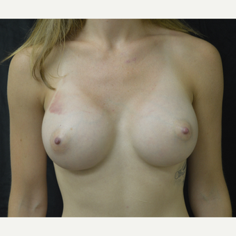 25-34 year old woman treated with Breast Augmentation after 3423957