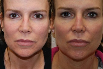 Permanent Lip Augmentation with Silikon-1000 before 1327189