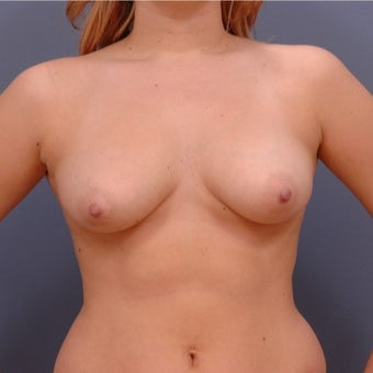 22 year old woman treated with Breast Augmentation before 2060772